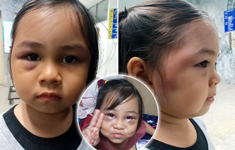 thai-little-girl-beaten-swelling-pattaya-school-teacher-mother-family-jaja